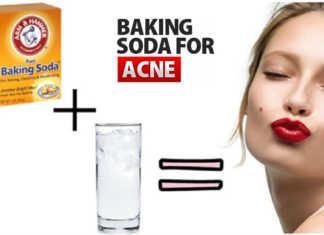 Trị mụn đúng cách bằng baking soda