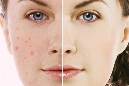 Tác dụng của mật ong với da mặt